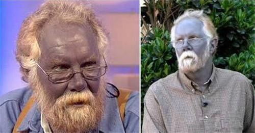 世界上真实存在的蓝脸人,犹如蓝色皮肤的阿凡达