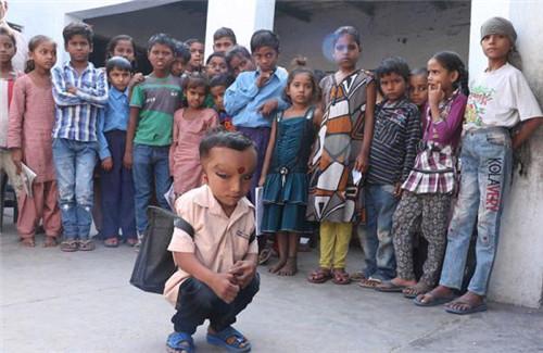 印度小男孩形似外星人 被村民当天神转世