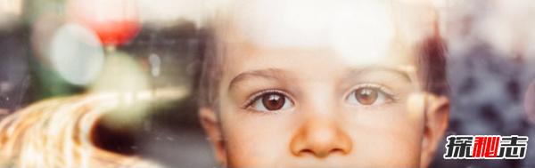 怎么看待虐童现象?受虐儿童的十大惨状曝光(附图)