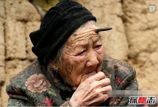 """百岁老人头上长""""犄角""""之谜,预示癌症病变(皮肤肿瘤)"""