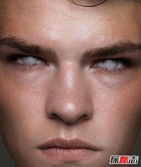 世界上稀有的银眼睛人,是一群特殊群体(盲人)