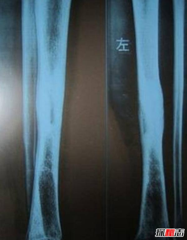 广州女孩患骨膜增生厚皮症,面部褶皱如古稀老人(染色体显性遗传)