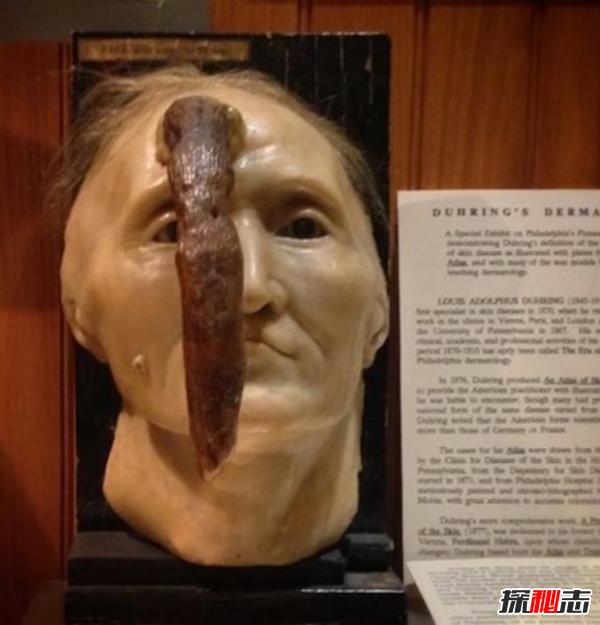 美国穆特博物馆肥皂女尸,重口味分分钟想吐(腐烂女尸成肥皂)