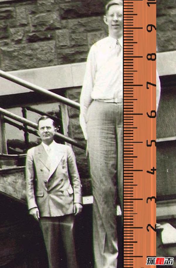 世界上最大的人:罗伯特·潘兴·瓦德罗(高达2米72)