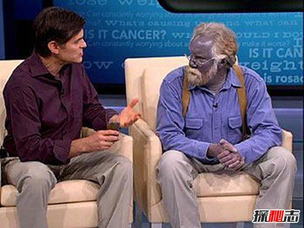 盘点世界上十大恐怖怪病,蓝肤症挑战人种认知