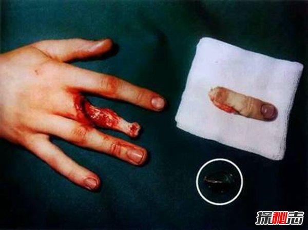 打保龄球戴戒指,手指上的肉会被活生生的剥落