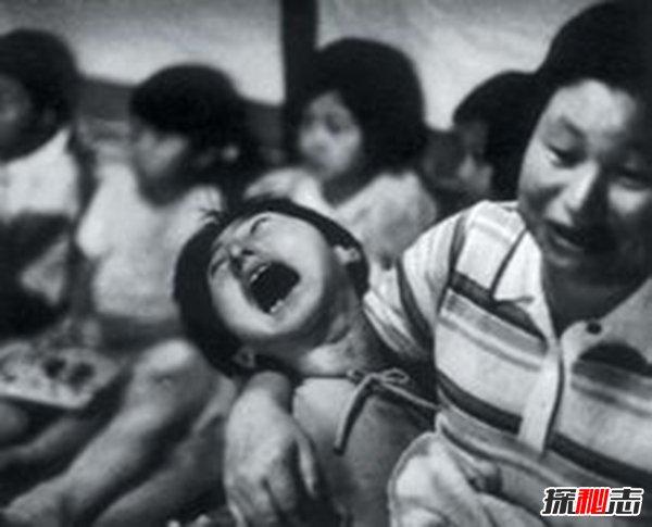 """日本水俣病事件,环境污染导致人们染上""""怪病"""""""