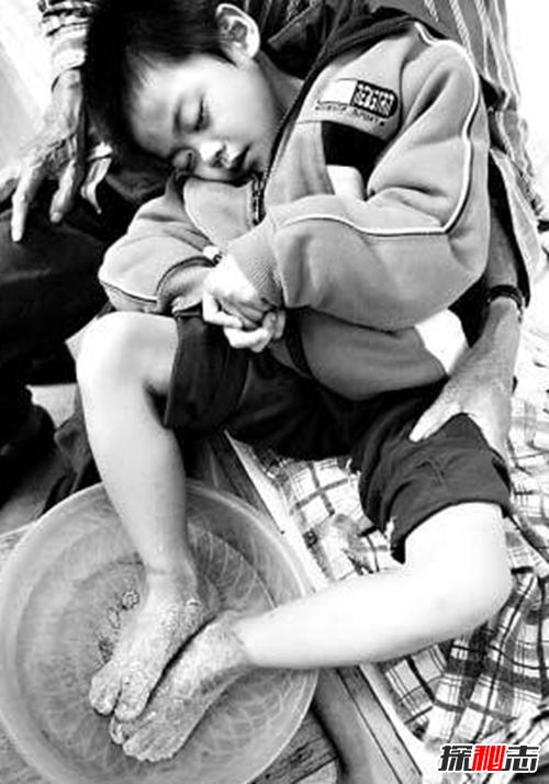 最恐怖的40种怪病,英国8岁少女患睡美人症(身体一夜神秘瘫痪)