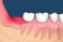 智齿是什么?一生最晚长出的牙齿(原始人用来咀嚼树根)