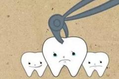 人为什么会长智齿:以前为了咀嚼粗食纤维(有些人不长)