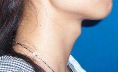 女性为什么有喉结?假如喉结明显是不是不正常