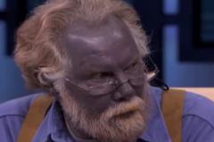 蓝血人种真的存在吗?存在有争议,浑身蓝色(血红素过量)