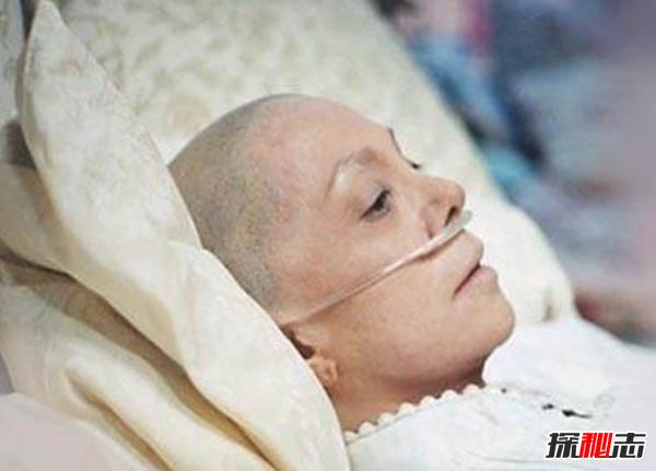 癌症病人死前太可怕了?盘点生活十大致癌谣言