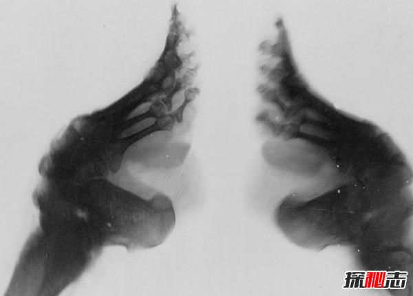 古人裹脚是为什么?三寸金莲脚的10个奇怪事实