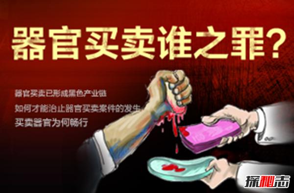贩卖小孩器官是真的吗?器官买卖的十大可怕事实