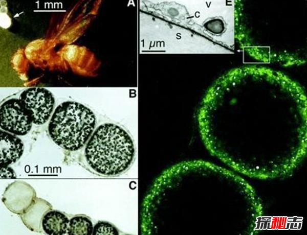 细菌最大有多大?世界上最大的细菌(附图片)