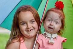 2岁女童为什么会面容衰老?伊拉斯,基因变异(80岁容貌)