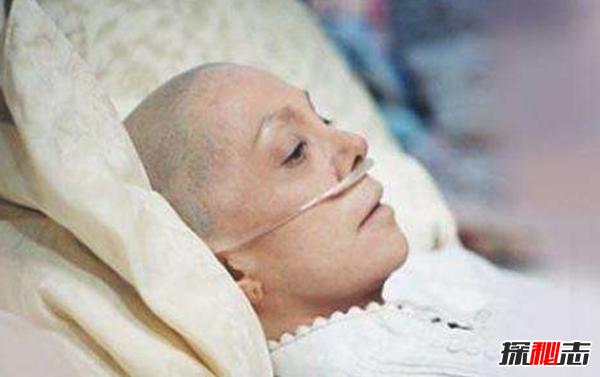 癌症发病率最高的国家 日本上榜,第一被称癌症之都