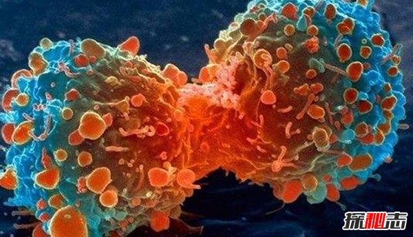 人类永远攻克不了癌症?癌症的十大可怕之处