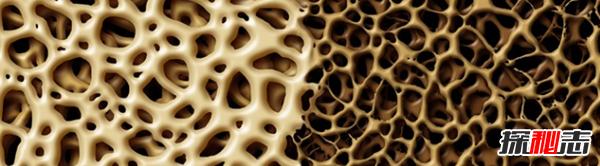 什么原因导致骨质疏松?骨质疏松的十大症状和治疗