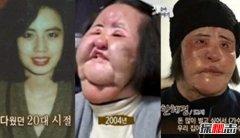 韩国电风扇阿姨韩慧景去世 整容前后对比照曝光