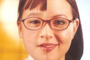 眼镜戴久了眼睛凹陷,皮肤失去活性而塌陷(镜框限制眼珠活动)