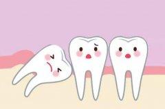 智齿不用拔的三种情况:智齿正常,智齿阻生,智齿没长出