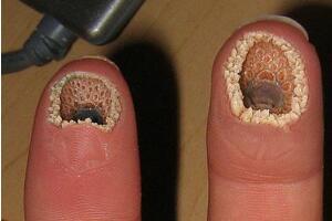 超恶心的空手指是什么,将七鳃鳗嘴巴P在手指上的恶搞图片