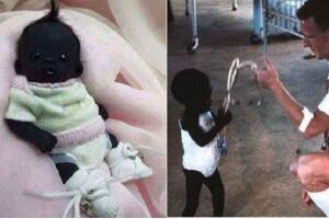 世界上最黑的孩子,眼珠都黑成碳了(长大图片曝光)