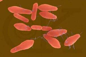 盘点十大世界上最毒的物质,H型肉毒杆菌(一克毒死一亿人)