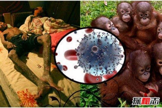 艾滋病的起源與發展解析,起源野生動物黑猩猩(源于非洲)